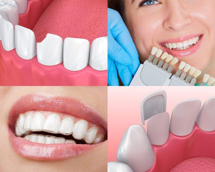 cosmetic dentist Columbia sc